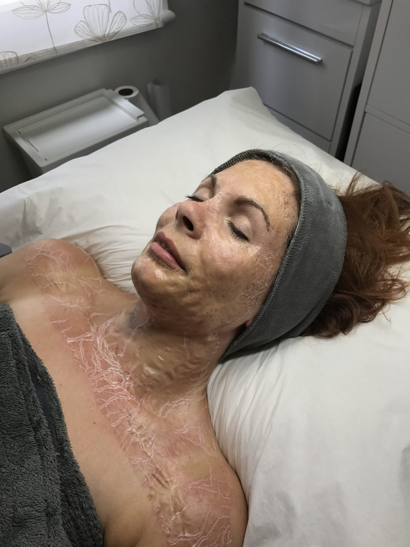DMK Enzyme Therapy Facial Skin Aspirations